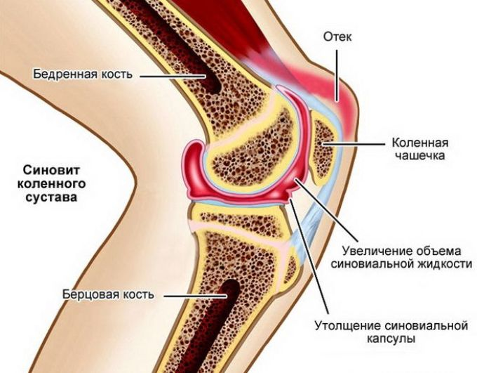 liigeste ja narvide haigused allika liigeste ravi