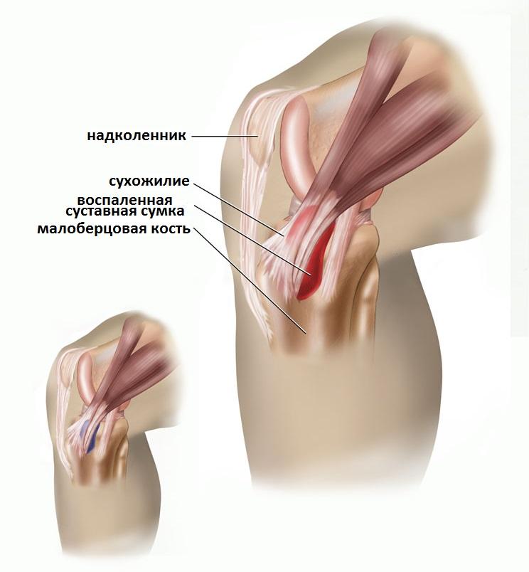 liigeste ravi langemisel kui polvili liigeste valude raviks