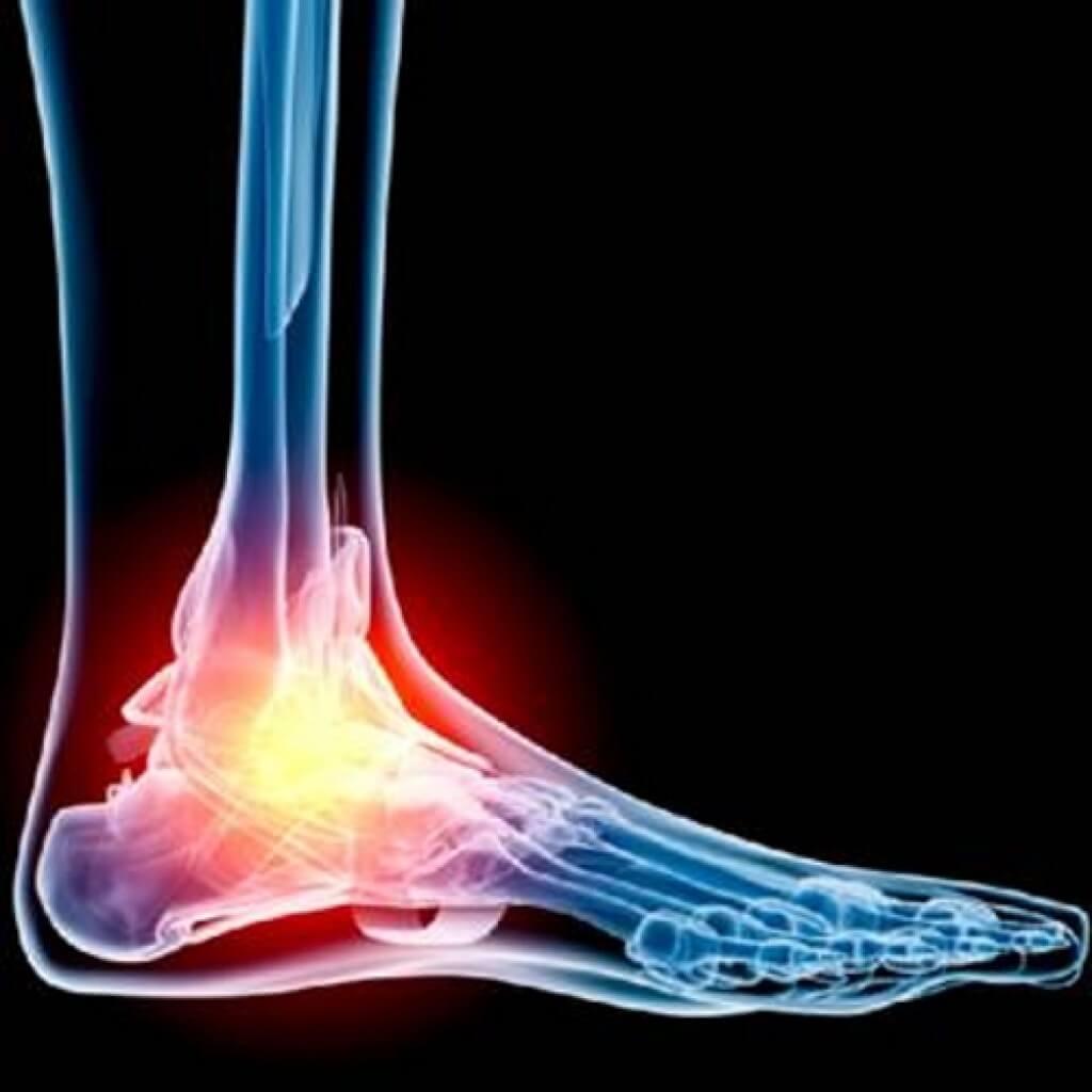 folki liigese jala ravi poletik kehaliigendid valulikud