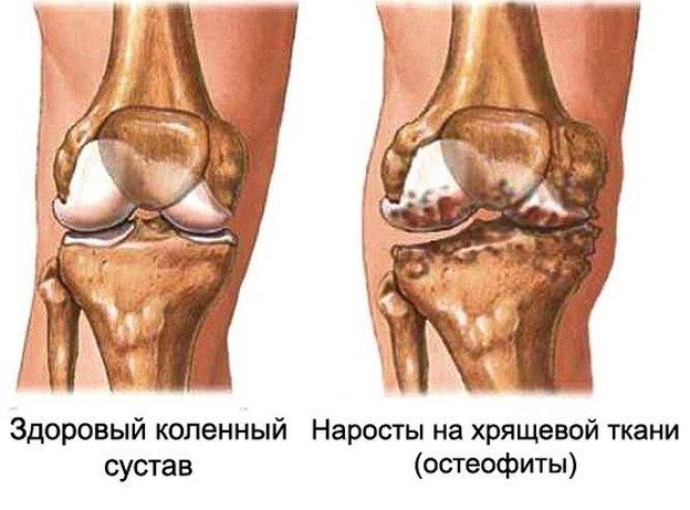 ravi jala liigeste artroosis valus kuunarnukk kui painduvad kaed