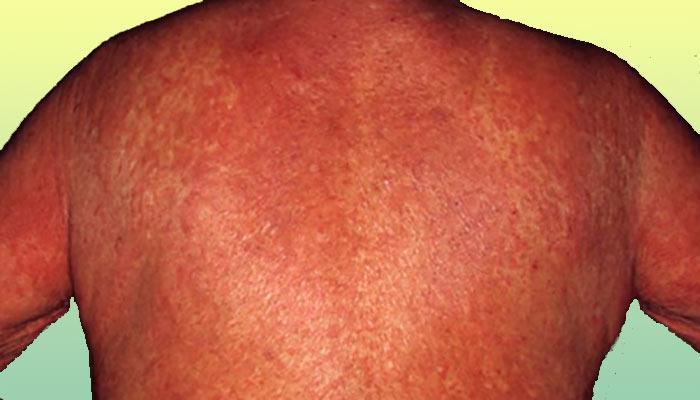 naftalani liigeste ravi kaeulatuste artroos pohjustab ja ravi