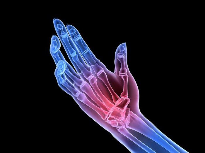 hiljutised saavutused artroosi ravis protrunza spin haiget