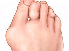 tonsilliidi valu liigestes karbitud liite poletik