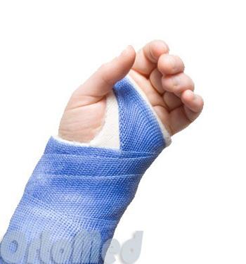 arthroosi 4 etappide ravi