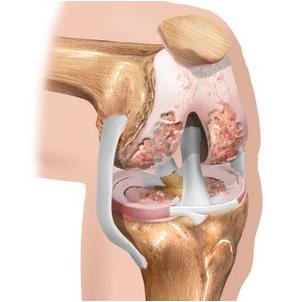 lihase polve haige artriidi sorme kasitsi ravi