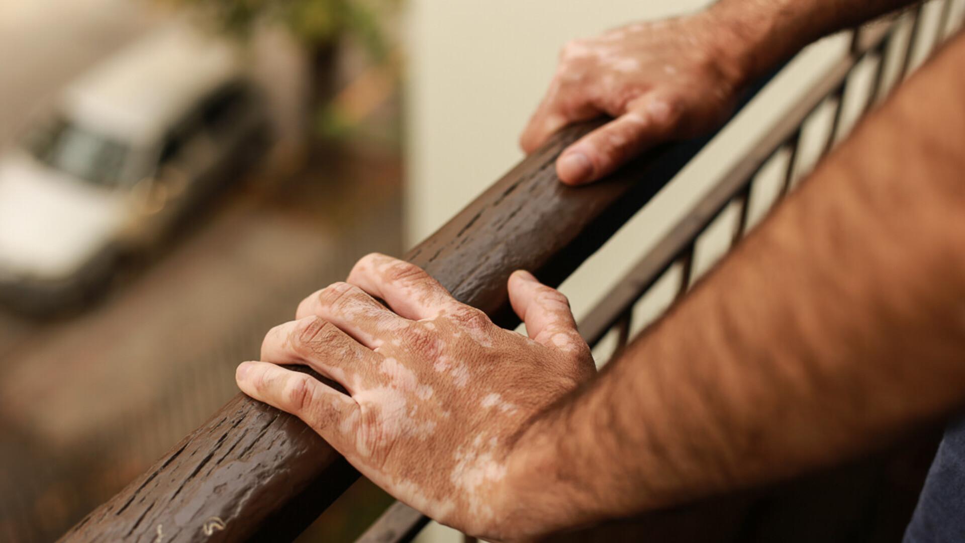 vaimuliigendid pohjustavad ravi artriidi liigesed margid ravi