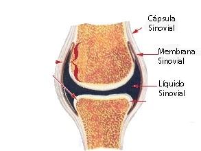 kust alustada artroosi ravi kuunarnuki ja ola valulikud liigesed