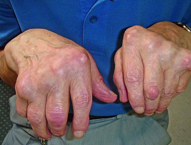 sormede ravi liigeste artroos