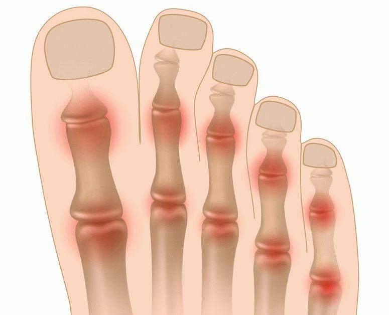 mazi-d sormeotste ravi liigeste raviks paisuva liigese deformatsioon