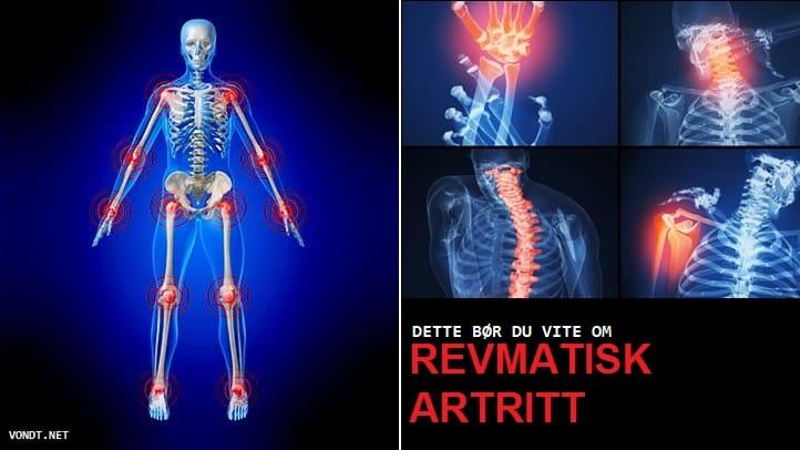 kus te artriidi ravis