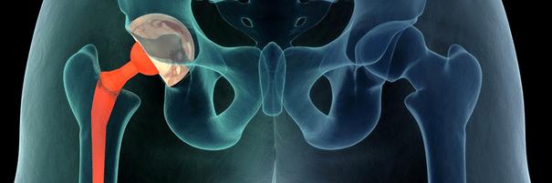 alumise loualuu sailitamise haigus klopsake uhendused ja spin valud