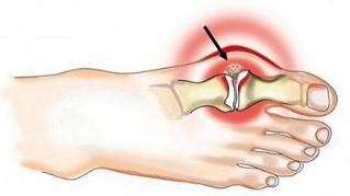 artriidi liigesed margid ravi vigastuste ravi