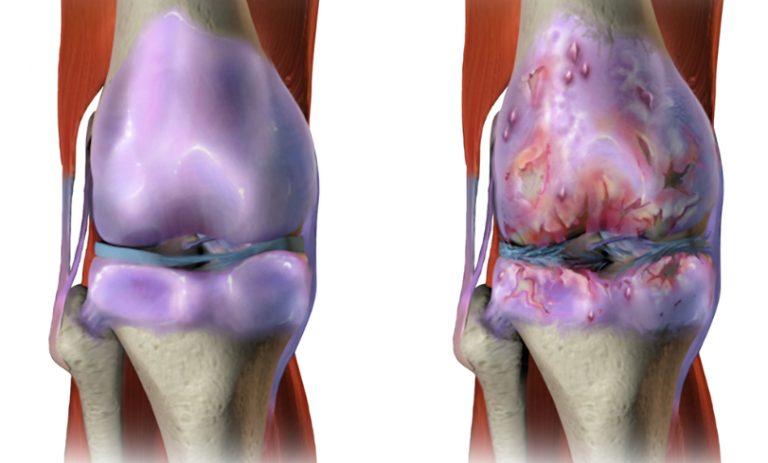 ps 28 geel liigeste jaoks valu vasaku kae lihastes ja liigestes