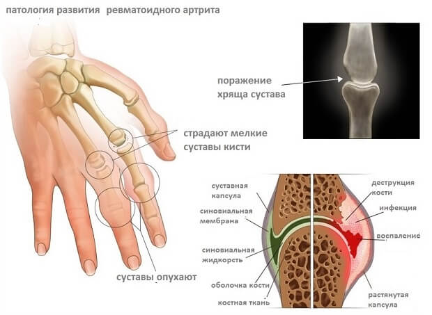 artroosi rohu ravi artroosi ravi esialgsetes etappides