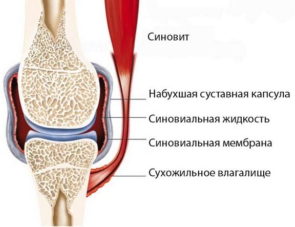 ravi liigeste kuldse vuntsete haigustega hapu tagasi sinep valutab