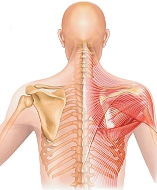 arthroosi etapi 1 ravi