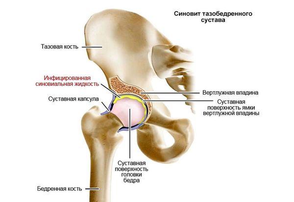 nakkushaiguste ravi liigeste haiguste puhkus ja valutab sormega liigese