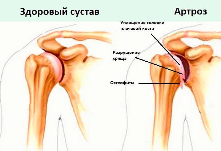 kust taotleda kui liigesed haiged valu kaenlaaluste ja liigeste valu