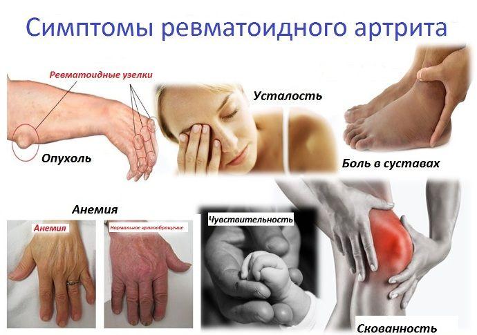 ennetamise artriidi liigesed shift liigeste ravi