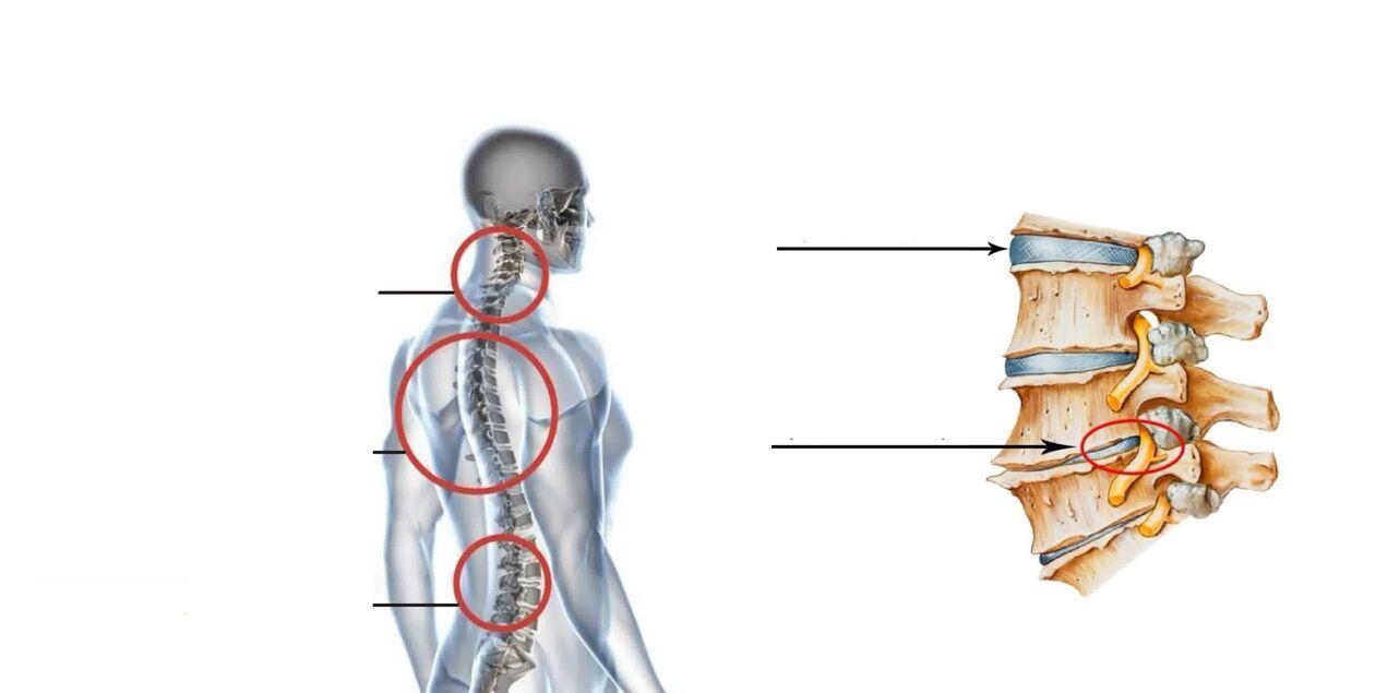 mri liigeste ravi valu suurte liigestega paremal