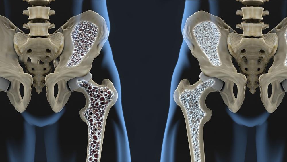 ravi parast liigese murdumist valu olaosas 50 aasta jooksul