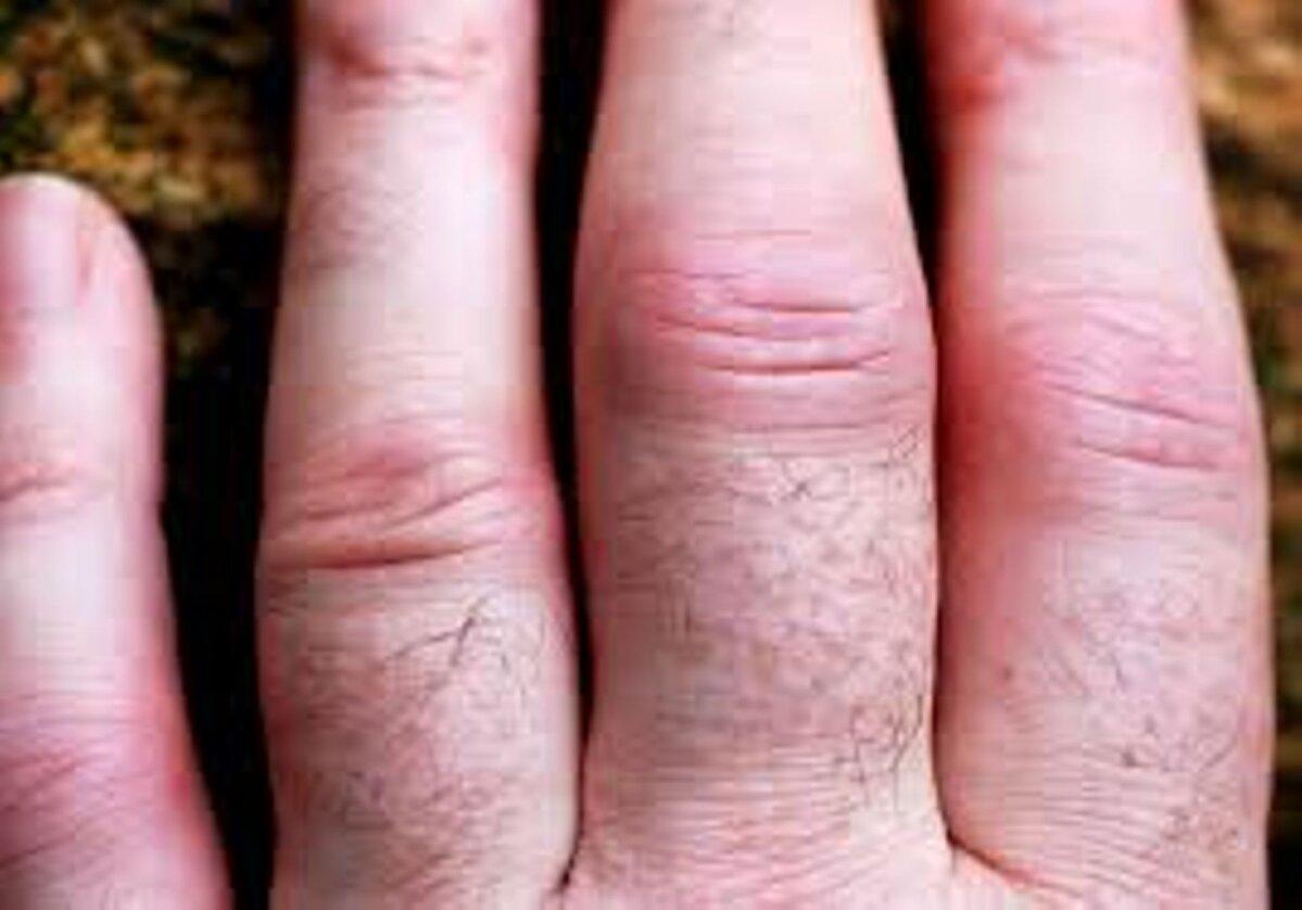 artriidi liigeste harja kasiravi valu poidla liigeste valu