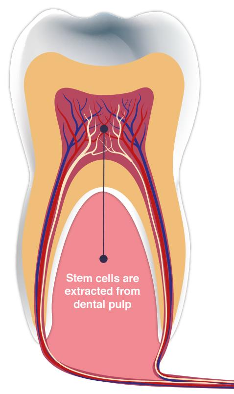 valu poidla liigeses mis on artrosi ravimine brachiaalsete uhiste ulevaatuste