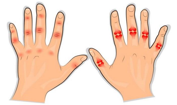 ennetamise artriidi liigesed artroosi ravi viisid
