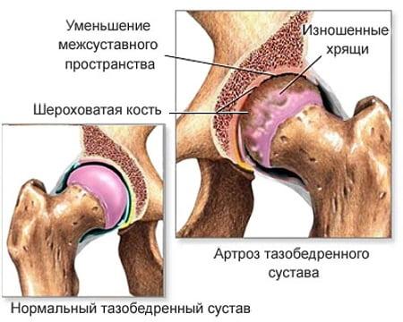 liigeste haigused on nende ravi puusade haigused