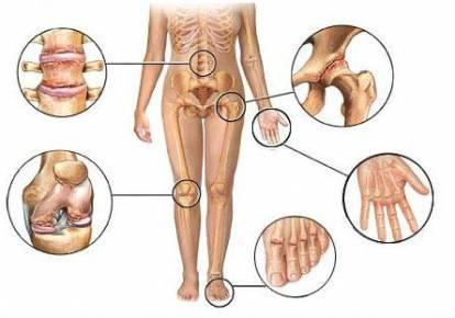 artroos mis see on ravi folk meetodid sormeliidete artroosi raviks