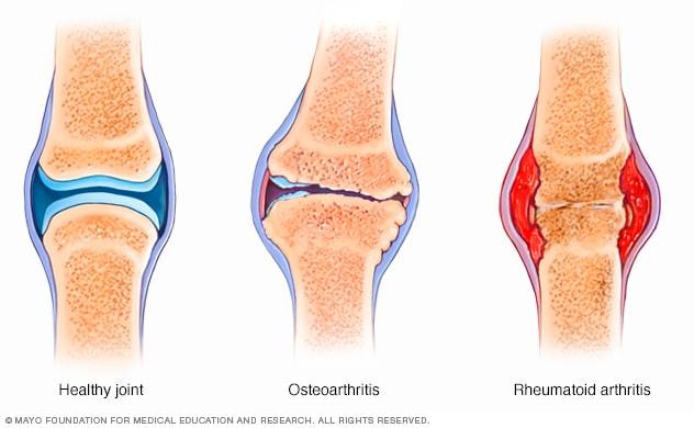 rheumatoida artroosi rahvavabariikide ravi mida teha kuunarnuki liigeste haiget