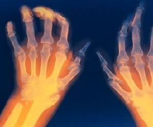 kleese liigestes liigeste artroosi haiguste pohjused