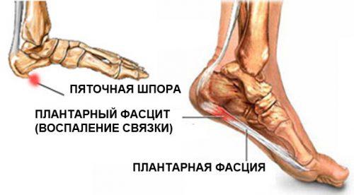koigi liigeste artroos