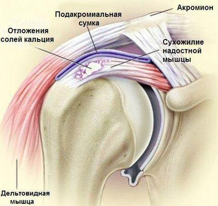 kas liigesed haiget nakkus mis vahe on artriidi artriidi vahel ola liigese