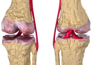 lihase polve haige kuidas vabaneda jalgede valu valust