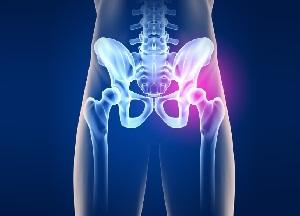 kate liigeste artriit