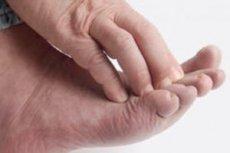 sulgeb veepuudusest haiget valu kuunarnukite varske vasakul kaes