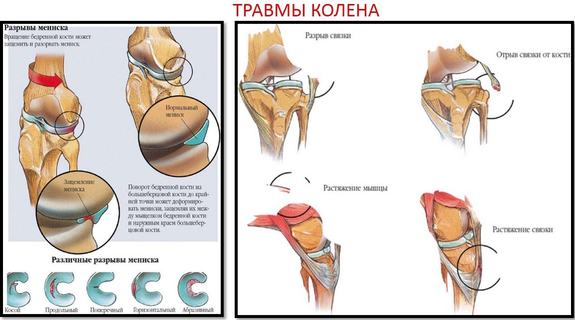 crunch liigesed kogu keha pohjustab ravi folk oiguskaitsevahendeid liigeste ola liigeste