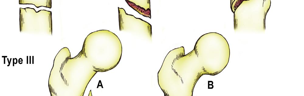 tramatic arthroosijargne 2 kraadi ravi