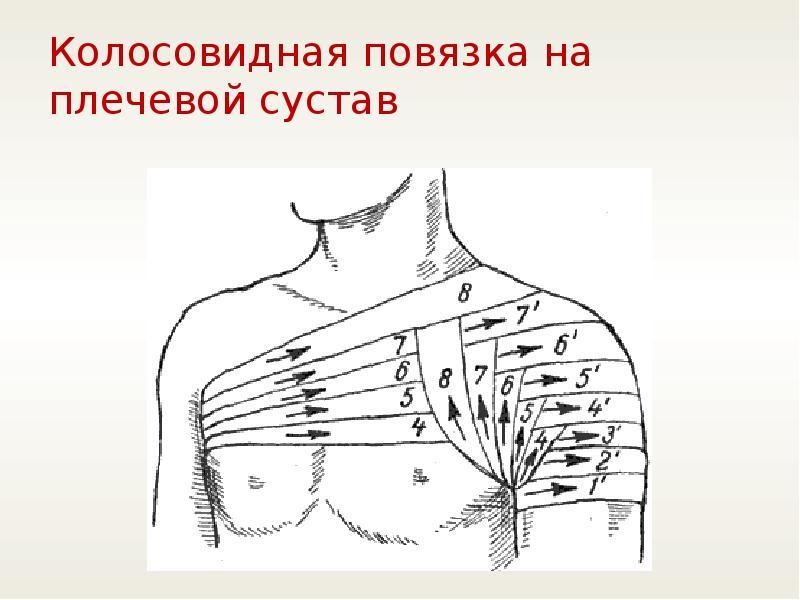 fingerite liigeste artriit folk oiguskaitsevahendeid