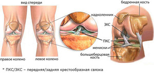 tugev valu polveliigese paindumisel ja pikendamisel kui raviks