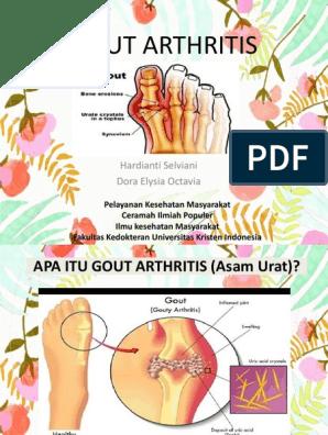 meditsiin teie liigeste haiguste jaoks