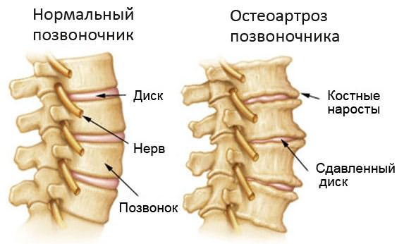 tillige liigeste tootlemisel uhise ja lihase ravi