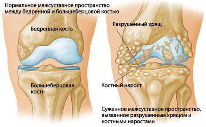 artroos kui alustada ravi uhine valu kuidas eemaldada valu