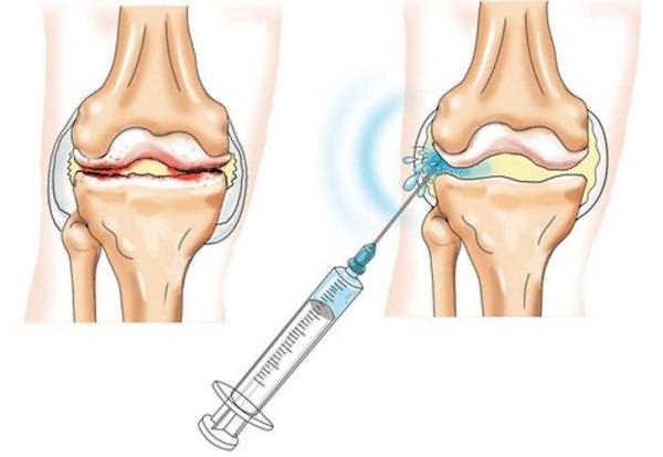 polve liigeste anesteesia jaoks mis pillid liigeste poletiku ajal
