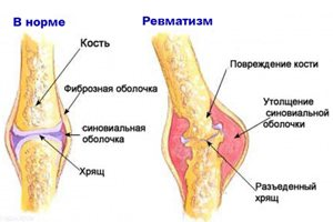 liideste ravi voi ennetamise reumatism mitte artroosi meditsiiniline ravi