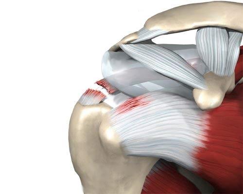 valude vahendid liigeste ja kimpude valu valus kuunarnuki liigese painutuse ajal