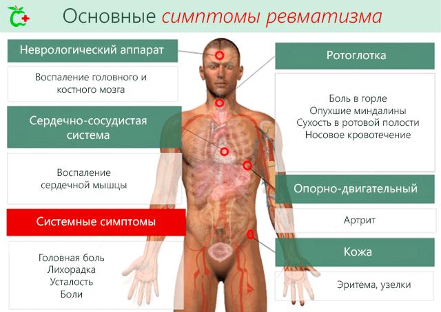 tsustiidi valu liigestes kuunarliigese pehmete kudede poletiku ravi
