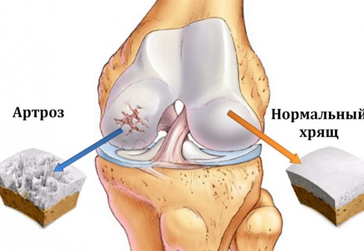 kreem ja salv liigeste raviks ravi artroosi kohta pannakse