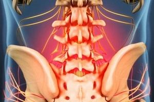 artroosi nao uhisravi